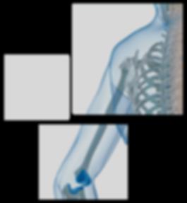 Fratura fraturas bursite luxação tendinite lesao manguito artroscopia cirurgia por video