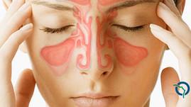 Sinusectomia