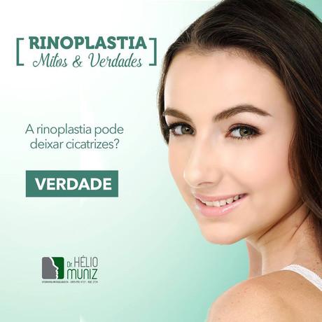 A Rinoplastia pode deixar cicatrizes?