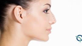 Redução do dorso nasal