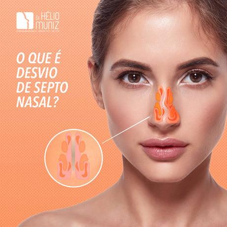 O que é desvio de septo nasal?
