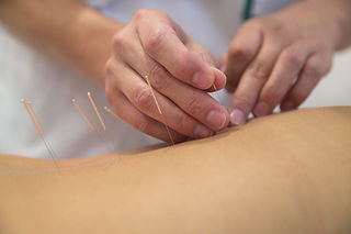 agopuntura-fertilità.jpg