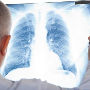 Рак лёгкого • Онкология • Карцинома • Медицина