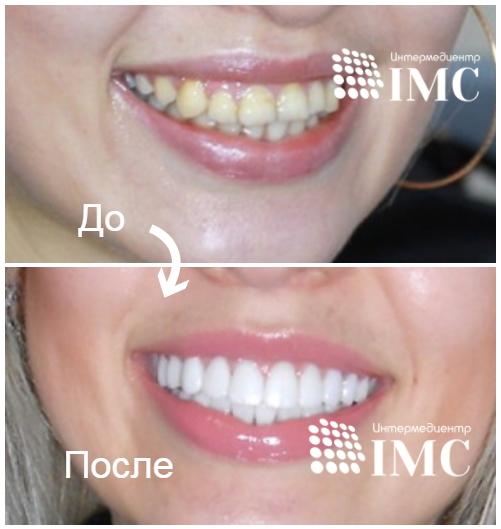 Philips ZOOM 4  отбеливание зубов