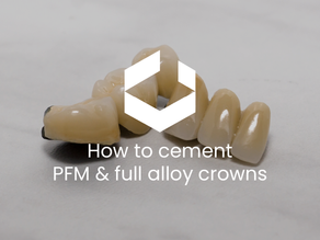 How to cement PFM and full alloy crowns