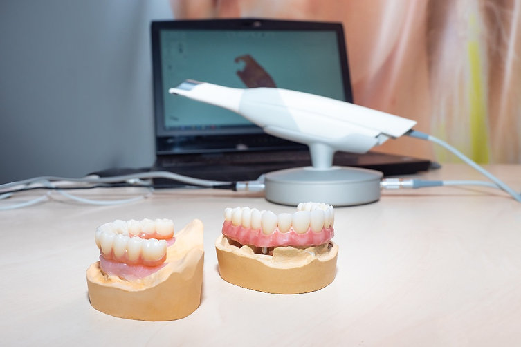 Cyberdent dental laboratory is able to manufacture a range of dental restorations from intra-oral scan STL files.