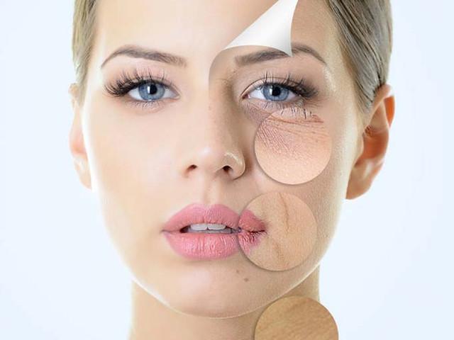 Fillers, Botox, IPL Skin Rejuvenation!