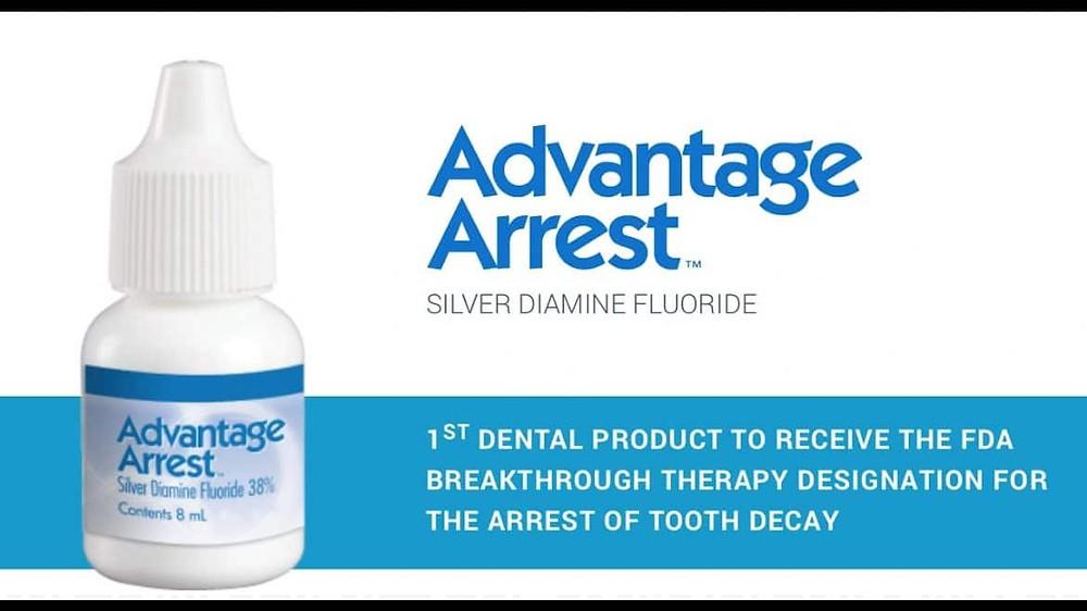 Silver Diamine Fluoride San Jose Dentist Milpitas