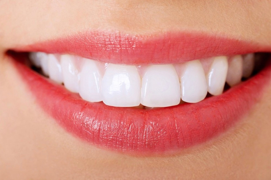 Beautiful smile dentist Milpitas