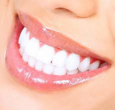 Teeth Whitening Milpitas Cosmetic Dentist