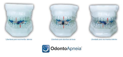 Odonto Apneia tratamento do ronco