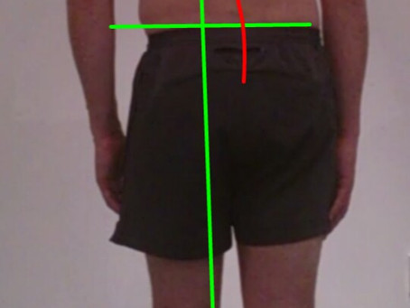 Posture what is it? And why is it important?