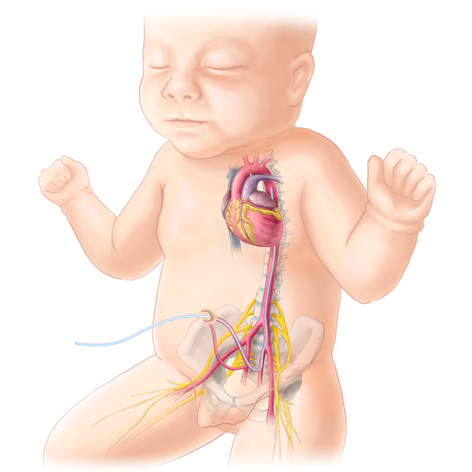 Medical Legal: Congenital Transposition of Great Arteries