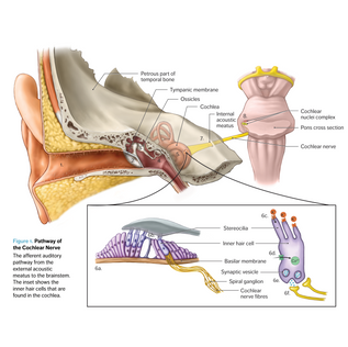 Textbook: Cochlear Nerve