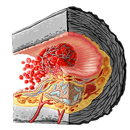 Coronary Artery Disease tissue cube illustration process