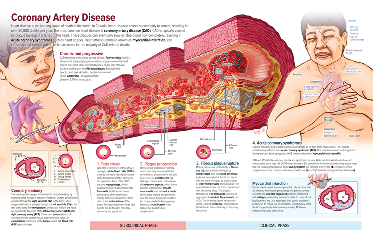 Coronary Artery Disease spread