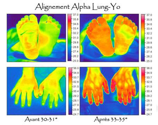 Alignement Alpha Lung-Yo