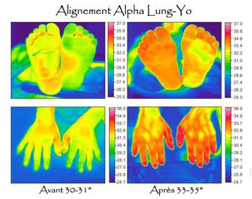 Alignement Alpha Lung-Yo