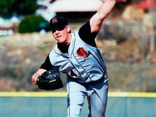 What Prosthesis?                                           Jim Schweitzer -Transtibial Amputee (BK)