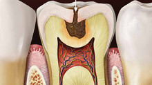 How do cavities form?