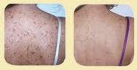 Skin Rejuvenation 3.jpg
