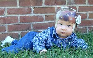 cranial remolding orthosis helmet