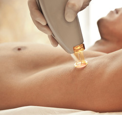 Milford-Connecticut-laser-hair-removal (