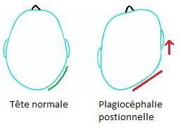 """La plagiocéphalie ou """"tête plate"""" chez le nourrisson"""