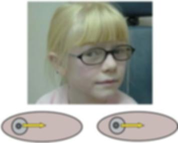 νυσταγμός, νυσταγμος, παιδοφθαλμίατρος, στραβισμος, στραβισμός, stravismos, παιδοφθαλμιατρος, παιδοοφθαλμίατρος ιωάννινα, οφθαλμιατρος για παιδια, οφθαλμιατρος γιαννενα, οφθαλμιατρος πατρα, θεραπεια στραβισμου, Μελέτη στραβισμού, Αντιμετώπιση Διπλωπίας, Χειρουργική Στραβισμού, Δακρύρροια στα παιδιά, Αμφιβληστροειδοπάθεια Προωρότητας, διαλείπον στραβισμός, εσωτροπία, συγκλίνων στραβισμός, εξωτροπία, αποκλίνων στραβισμός, ανωτροπία, υποτροπία,