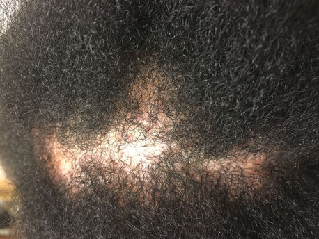 Why Is My Hair Thinning?  5 Tips to Restore Thinning Hair