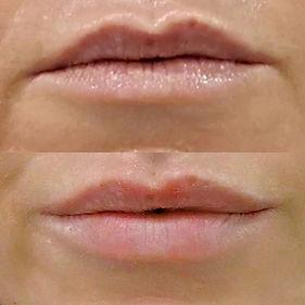 Hidratación labial