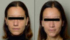 Rejuvenecimiento facial . Full face