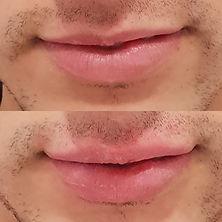Aumento labial hombre con hialurónico