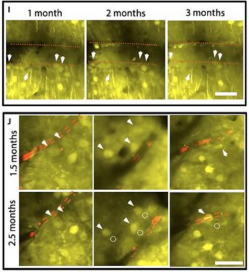 14. Ultraflexible nanoelectronic probes form reliable, glial scar–free neural integration