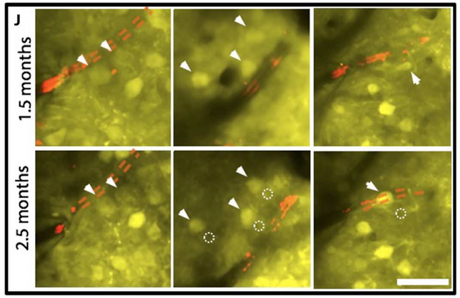 longitudinal two-photon imaging of the NET-tissue interface