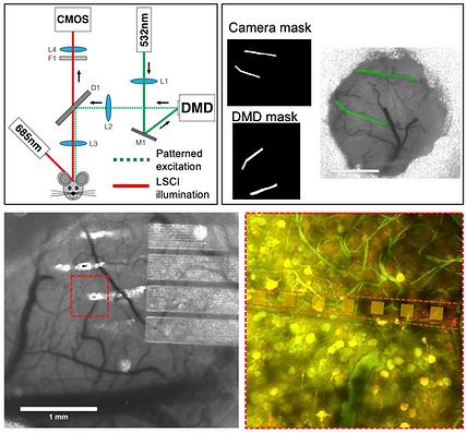 19. Nanoelectronics enabled chronic multimodal neural platform in a mouse ischemic model
