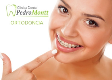 7 Beneficios de la Ortodoncia