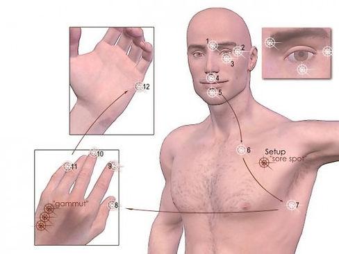 Punkter, der benyttes til til behandlingen ved TFT