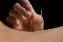 akupunkturbillede 2