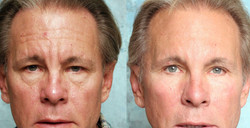 Anti-wrinkle Botox Cheshire Competitive Pricing