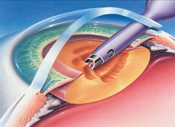 Phaco cataract surgery
