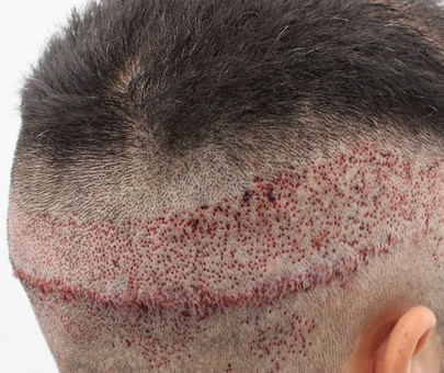 Reparación de Cicatrices