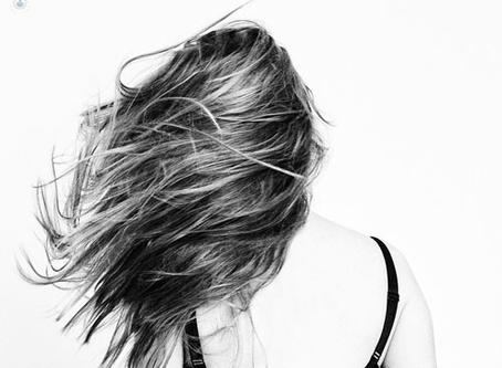 La caída de pelo en mujeres