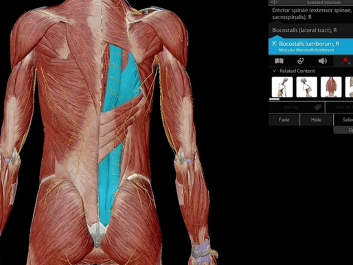 Why do we feel Muscular Pain?