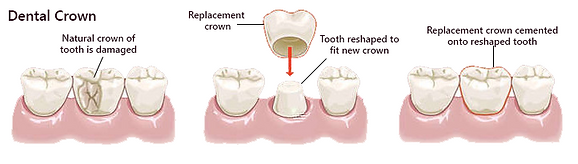 dentist larbert crown nhs falkirk