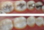 White Fillings. Dentist larbert falkirk stirlingshire