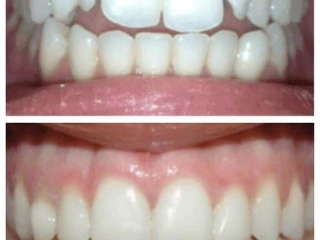 Veneers Veneers and more Veneers