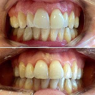 braces larbert dentist falkirk