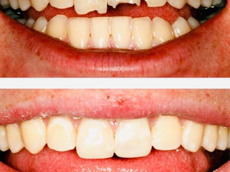 Composite Bonding For Same Day Repair of Fractured Teeth
