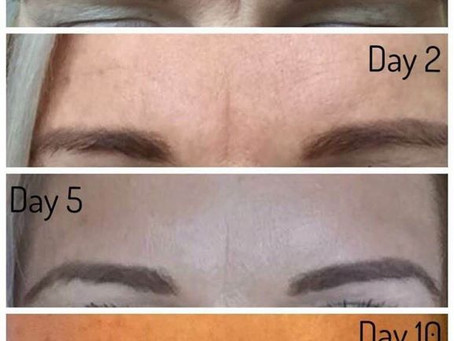 To Botox or Not Botox - That Is The Question